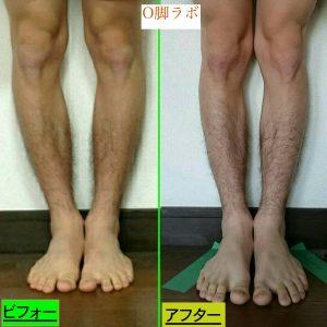 O脚を改善して身長を伸ばす