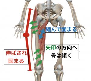O脚とはどのような状態かを理解する